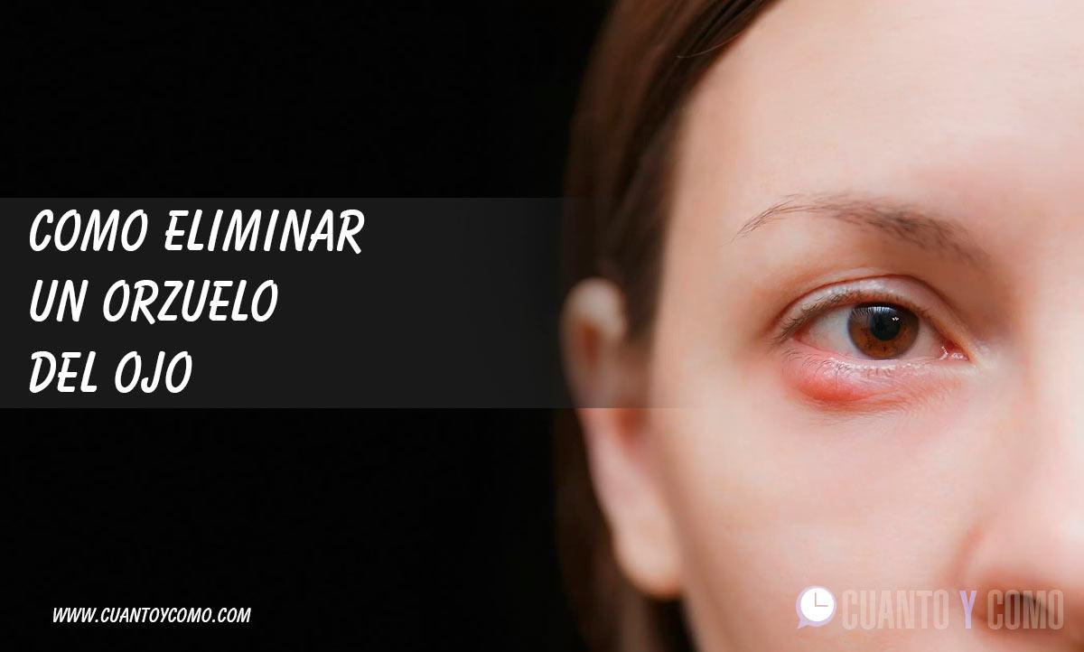 Como eliminar un orzuelo del ojo
