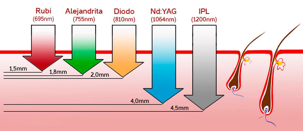 Tipos de depilacion laser